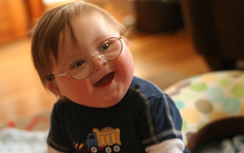 10 fakta du antagligen inte visste om Downs syndrom