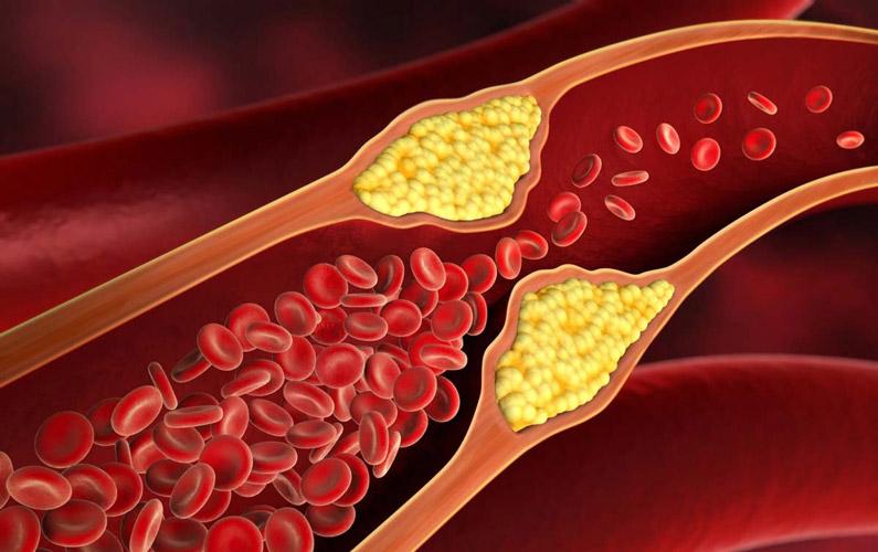 10 fakta du antagligen inte visste om kolesterol
