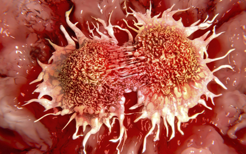 10 fakta du antagligen inte visste om cancer