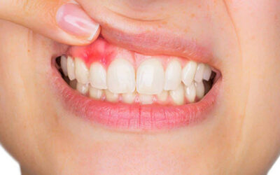 10 fakta du antagligen inte visste om ditt tandkött