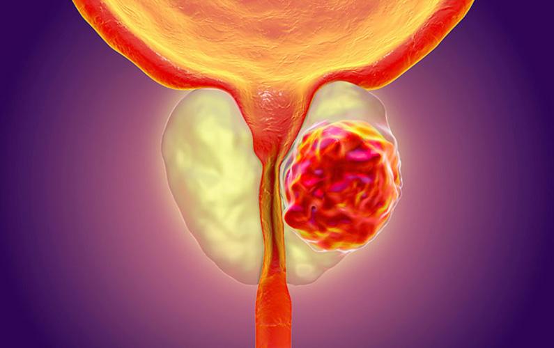 10 fakta du antagligen inte visste om prostatacancer