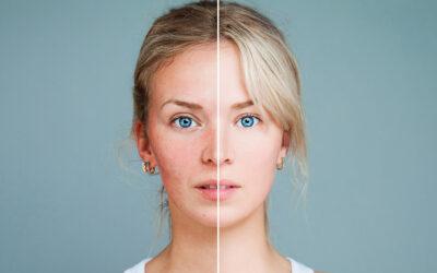 10 fakta du antagligen inte visste om akne