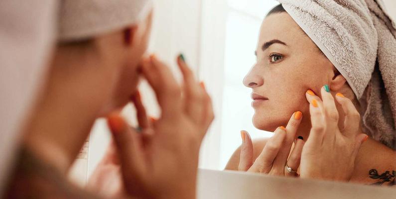 Det hjälper inte att tvätta sig extra mycket när man har akne. Däremot rekommenderas det att du inte använder feta krämer och oljor, eftersom de täpper till talgkörtlarna och kan förvärra aknen.