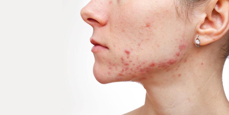Framförallt uppstår akne i puberteten, där hormonbalansen förändras i kroppen och du får mer könshormoner.