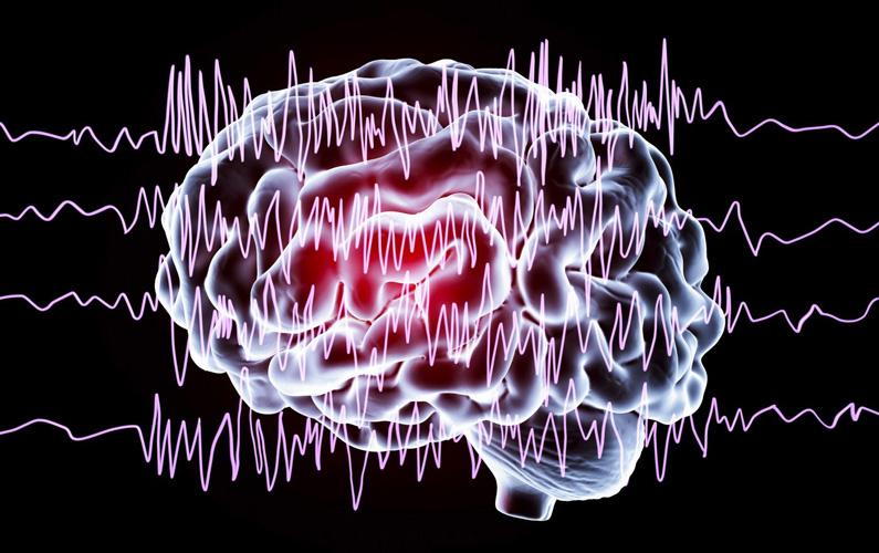 """Epilepsi – från latinska """"epilepsia"""" – är en samlingsgrupp med diagnoser av störningar i hjärnan, som ger återkommande epileptiska anfall."""
