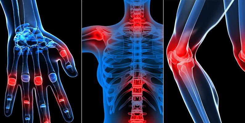 Birst på D-vitamin är med stor sannolikhet kopplat till utvecklandet  av Reumatoid artrit, har studier visat.