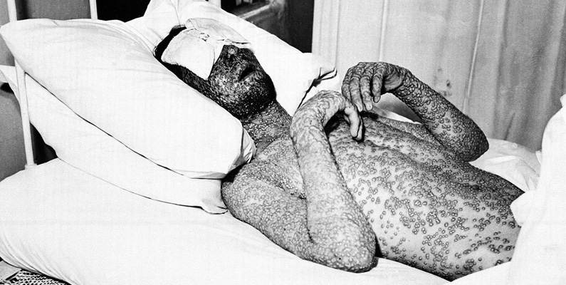 Bilden föreställer en man som har smittats av smittkoppor. Idag är sjukdomen förklarad som utrotad, tack vare vaccin.