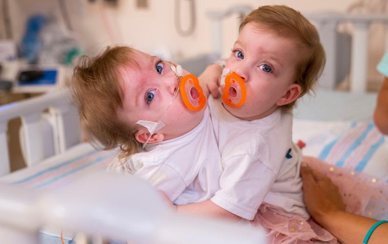 10 fakta du antagligen inte visste om siamesiska tvillingar