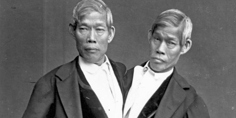 """Fenomenet är uppkallat efter de thailändska bröderna Chang och Eng Bunker (1811 – 1874), som var sammanvuxna i bröstbenet. De turnerade som """"De siamesiska tvillingarna"""". Namnet härstammar från Thailand, som då hette """"Siam""""."""